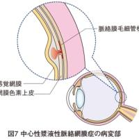 中心性 漿液性 網膜 脈絡膜 症