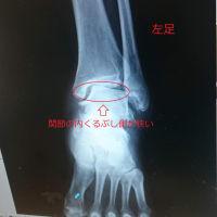 変形性足関節症-4年前の症状