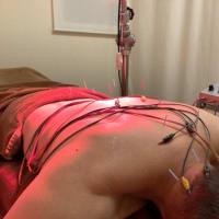 肩の痛みと鍼灸治療