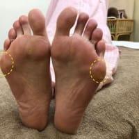 足裏の小趾側のタコが痛い(第五中足趾節関節部)