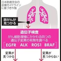 肺がん治療、私の薬は? 遺伝子変異を特定、個別化医療