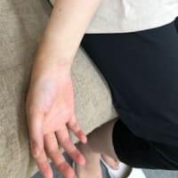 レーザー治療器を取り入れた理由 (2) 退行性関節炎