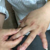 七星鍼法の魅力(Part 34) 活性鍼と易