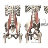 腰部脊柱管狭窄症(LSS)について(勉強会)