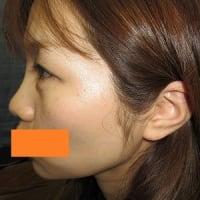 二重瞼(埋没法)モニター。(その13)