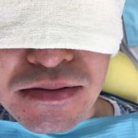 難易度のかなり高い下顎の親知らずの抜歯の予後ご報告