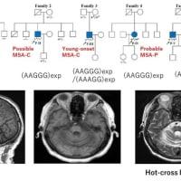 多系統萎縮症の新しい鑑別診断「RFC1遺伝子関連疾患」とマオリ族の話