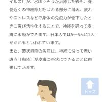 帯状疱疹 6  原因