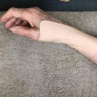 七星鍼法の魅力(Part 33) 腱鞘炎の治療