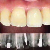 細かい所に神は宿る、歯科治療とはそう言うモノでは