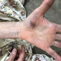 自然内出血:老化でも起こりますがその他の病気も考えます