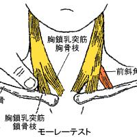 胸廓出口症候群の針灸治療 ver.1.6