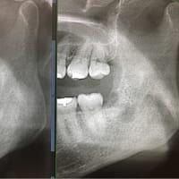 難しい親知らずの抜歯に関わる話