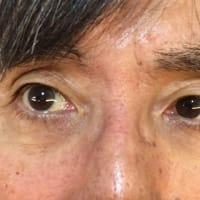 目が・・・
