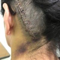 脳腫瘍 入院8日目