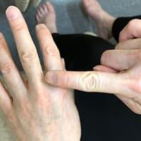 七星鍼法の魅力(Part 32) 治療点と治療法が多いので楽しいです