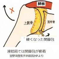 凍結肩に対するROM拡大の刺針手技 ver1.1