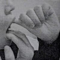 左顎の診察+肩のリハビリ1回目(10.21
