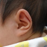 スタール耳の矯正。生後1か月女の子。