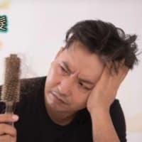 重度の脱毛の男性は、はげからそれほど遠くありませんか?「治す」には4つの方法があります