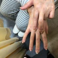 七星鍼法の魅力(Part10) 中手骨の痛み