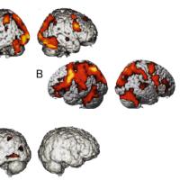 計算と脳の働き