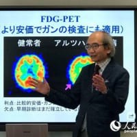 """Alzheimer's disease"" clinical trial with ""Gout medicine"" 2019年"