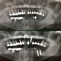 いつも同じように、腫れない痛がらせない抜歯即時インプラント