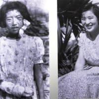 <広島・原爆資料館> 入り口に被爆し佇む少女の大きな写真