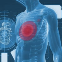 心房細動の原因にはどのようなものがありますか?