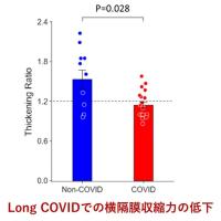 新型コロナウイルス感染症COVID-19:最新エビデンスの紹介(7月17日)