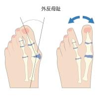 足のトラブル!外反母趾