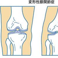 膝OAのメカニズム(勉強会)