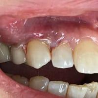 予後報告 歯茎を再生した手術1週間