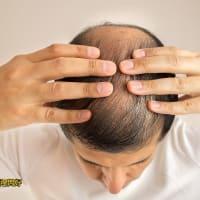自毛植毛をすべきかどうか、以下の4つの点を考慮してください!