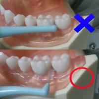 歯間ブラシの正しい使い方について