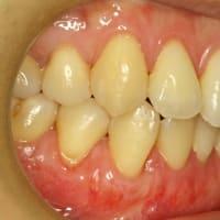 歯茎の再生治療例