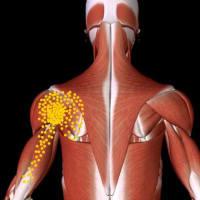 長引く肩の痛み~肩甲下筋の線維化や瘢痕~