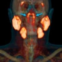 人の喉に未知の臓器を発見、オランダ研究チーム発表