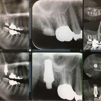 上顎大臼歯部への抜歯即時荷重インプラント