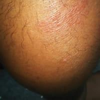 本日はやっとかかりつけ医に。実は昨日から営業していたとか。蜂窩織炎(ほうかしきえん)と診察され、メイクアウト7日間分などを処方してもらいました。