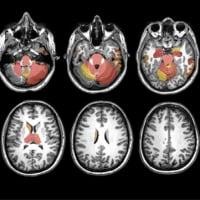 RFC1遺伝子関連疾患は小脳と感覚神経だけの疾患ではない.