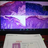 乾癬を中医学で考える・「血熱」の概念、慢性炎症