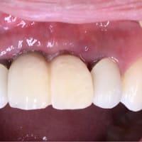 インプラント周囲炎からリカバリー、即時荷重インプラントと骨造成GBR、歯肉造成 1ヶ月の報告