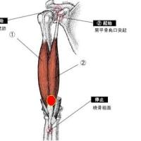 筋肉疲労による痛み:上腕二頭筋への刺鍼