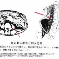 「秘法一本鍼伝書」②<下肢後側痛の鍼>の現代鍼灸からの検討 ver.1.1