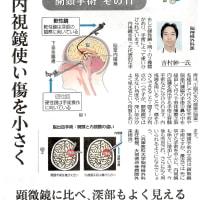 神経内視鏡