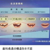 「歯垢病」と「咬合崩壊病」を知っていますか?