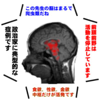 日本政治家の『入院』事情