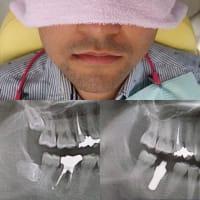 インプラント寺子屋2019第3回 低侵襲外科手術、水平埋伏智歯抜歯を中心にしてお話します!